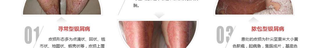不同类型的银屑病有不同的表现