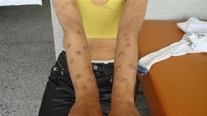 女性牛皮癣的症状有哪些