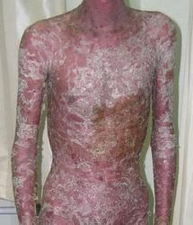 红皮病型牛皮癣的发病因素