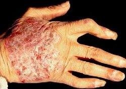 关节病型牛皮癣该怎样护理