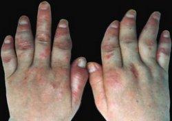 脓疱型牛皮癣的反复发作该如何预防